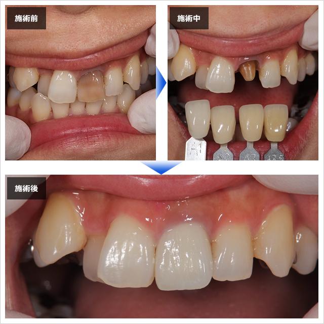 歯 値段 セラミック セラミックで歯を治したい方へ!値段や特徴、種類を比較